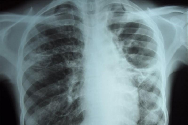 Casos de tuberculose continuam a descer em Portugal
