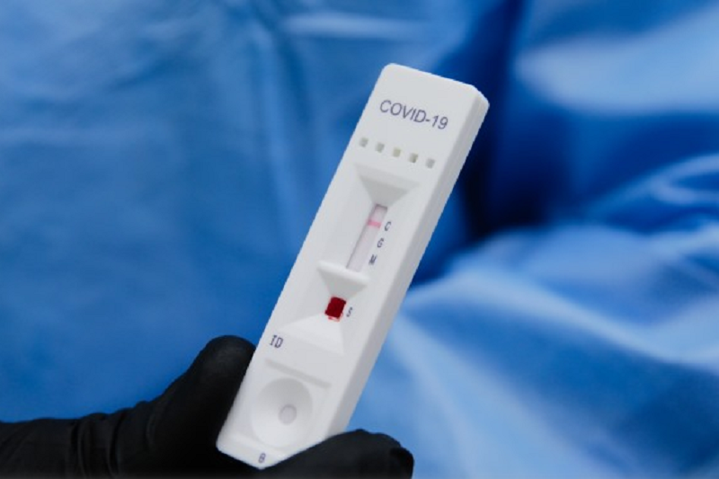 Covid-19: Estudo para monitorizar imunidade na população portuguesa já começou